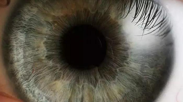 увеит, глаз