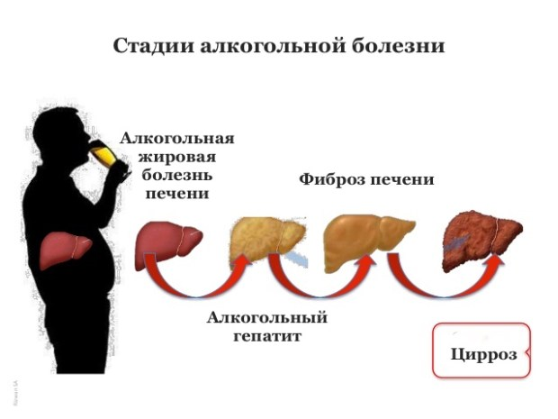 Алкогольная болезнь печени, цирроз