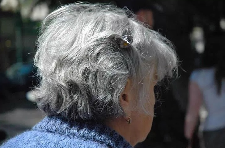 Деменция с тельцами Леви, МРТ