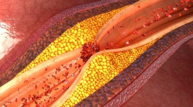 холестерин, инфаркт, сердечно-сосудистые заболевания