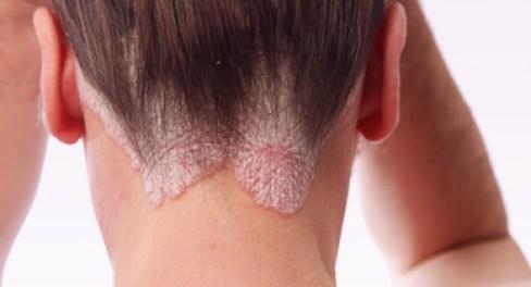 псориаз, выпадение волос, алопеция
