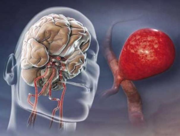инсульт, аневризма сосудов головного мозга