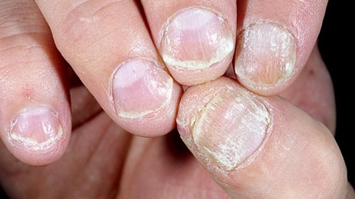 псориаз ногтей,