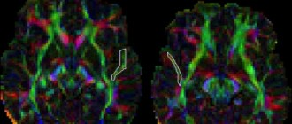 аутизм, головной мозг, фМРТ, симметрия