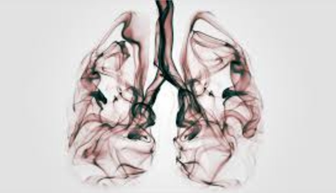 эмфизема, хроническая обструктивная болезнь легких, ХОБЛ