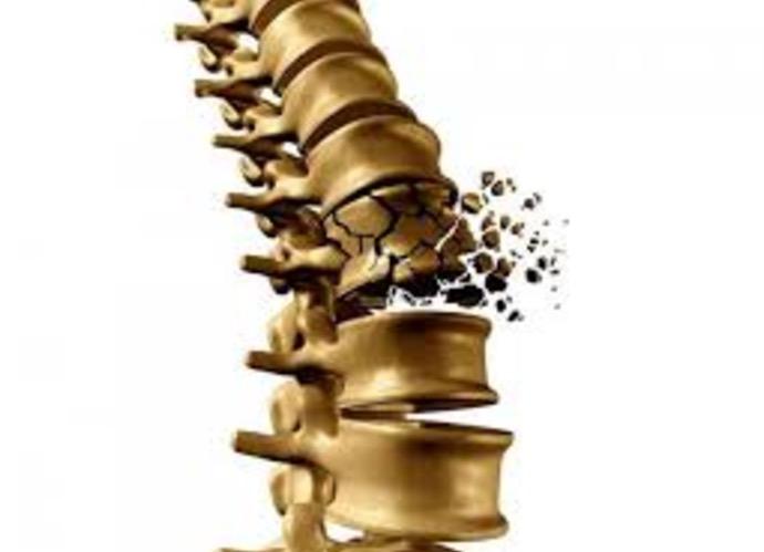 остеопороз, фактор роста
