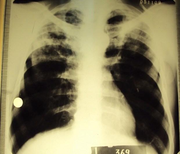 туберкулез, потеря слуха, аминогликозиды,