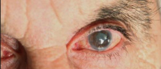 Витамин B3, глаукома