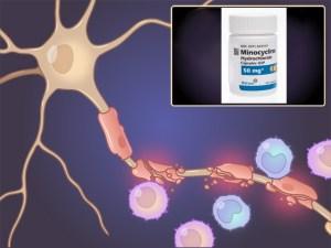 препараты, угри, рассеянный склероз, миноциклин