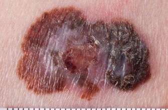 болезнь Паркинсона, меланома