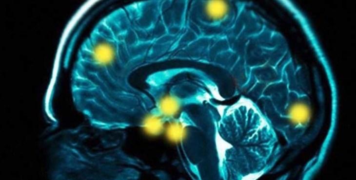 антидепрессанты, болезнь Паркинсона