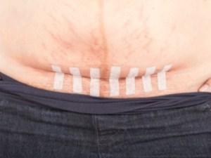 кесарево сечение, ожирение