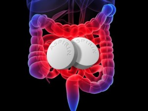 аспирин, рак желудочно-кишечного тракта