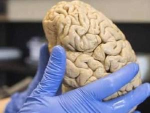 Вакцина, болезнь Альцгеймера