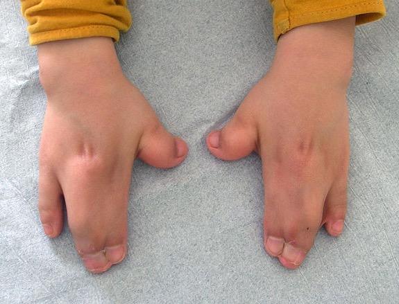 Синдром Аперта