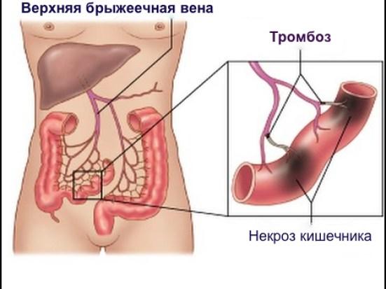 тромбоз брыжеечных вен, тромбоз брыжеечной вены симптомы
