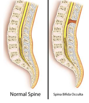 Spina bifida occulta, скрытое незаращение позвоночника, Spina bifida occulta - причины, Spina bifida occulta лечение