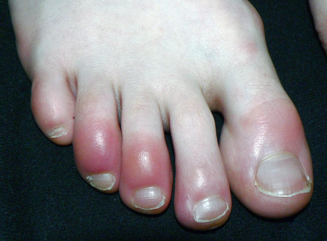 Покраснение пальцев ног и рук