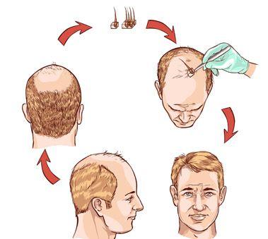 Насколько эффективна пересадка волос?