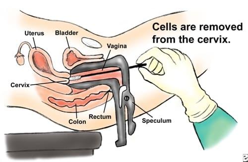 ПАП тест – анализ на рак шейки матки, программа скрининга рака шейки матки