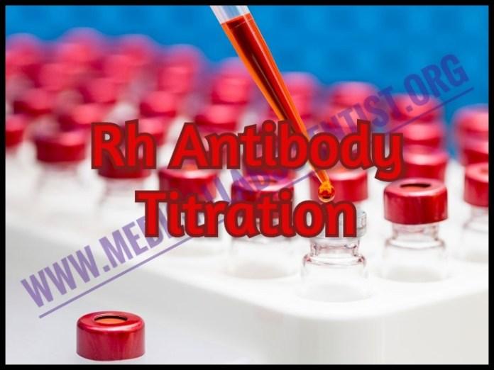 Rh Antibody Titration