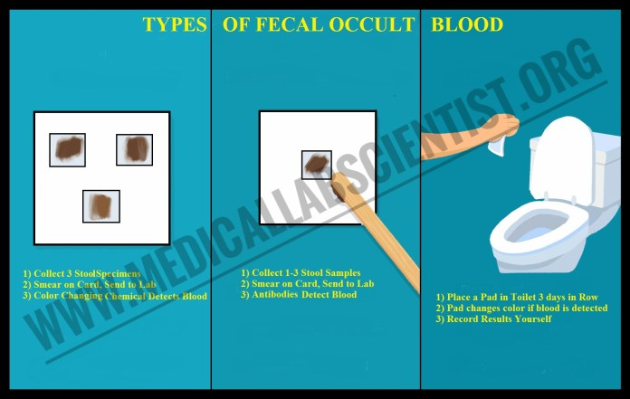 Types Of Faecal Occult Blood
