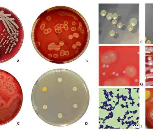 Staphylococcus Aureus – Cultural Characteristics