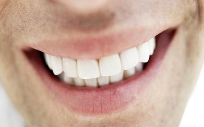 teeth.jpg-1024%C3%971024-pixels.jpg