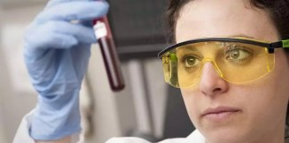 Venous-thromboembolism