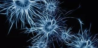 brain stem cell transplant