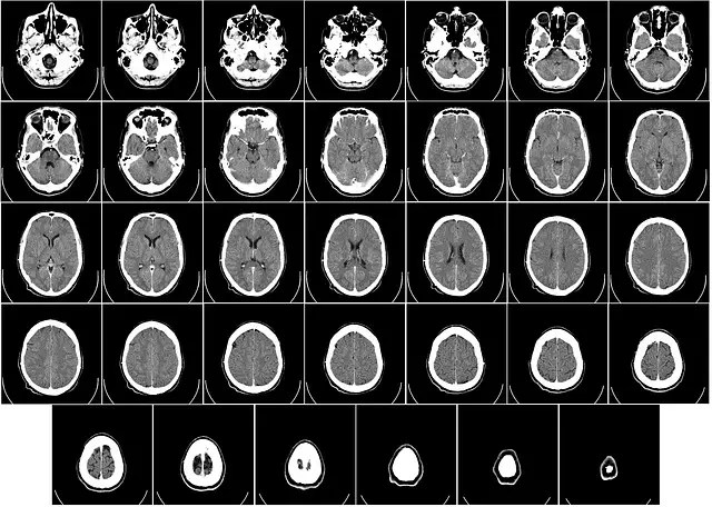 stroke-related dementia