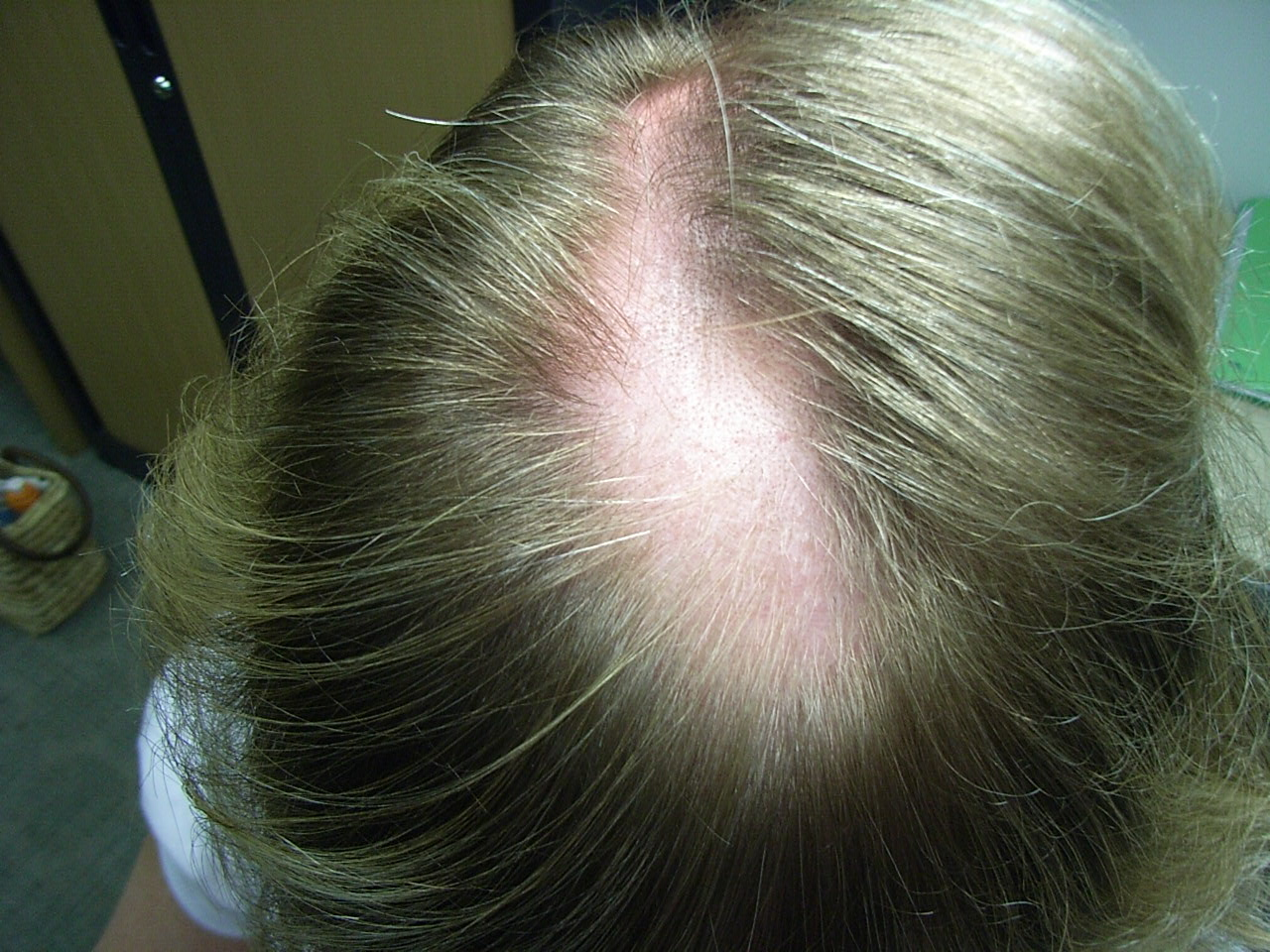 Medical Pictures Info Alopecia Areata