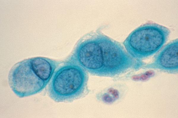 Αποτέλεσμα εικόνας για chlamydia trachomatis