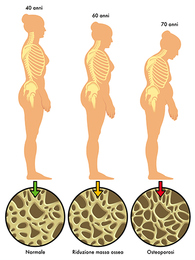Vitamin D osteoporosis