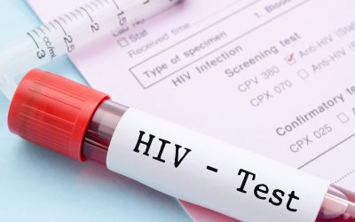 India along with Netherlands going to start one of kind research on HIV/AIDS