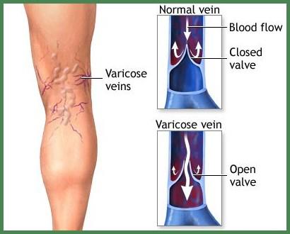 Varicose Veins - Medical Spa Club