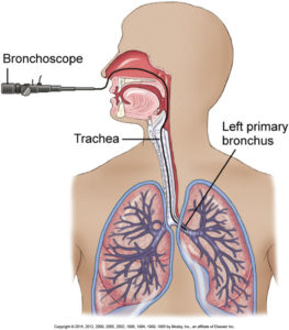 endoscopy-bronchoscopy