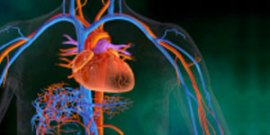 Myocardial Infarction or Heart Attack
