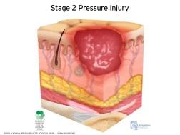 pressure-injury-pressure ulcer