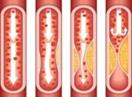 Medical Terminology Quiz - Myocardial Infarction Heart Attack