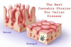 cannabisceliacdisease