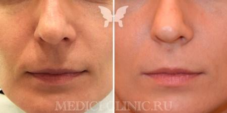 Результат лазерной шлифовки кожи лица