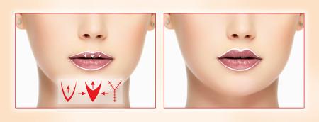 Операция «V-Y пластика» в клинике MEDICI