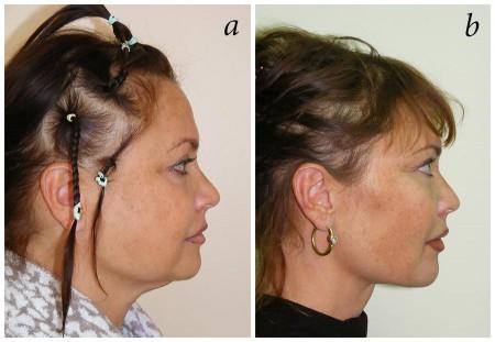 Рис. 9. Пациентка Л., 52 года. Вид до вмешательства (а) и через 9 месяцев после эндоскопической суспензии средней трети лица и передней платизмопластики