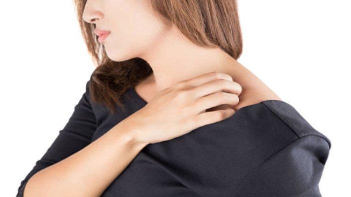 eczema-01-grande