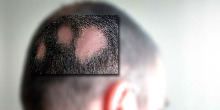 for-web-alopecia-areata-calva-area-sin-pelo