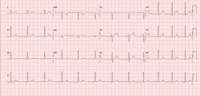 Eletrocardiograma normal - Feminino 24 anos