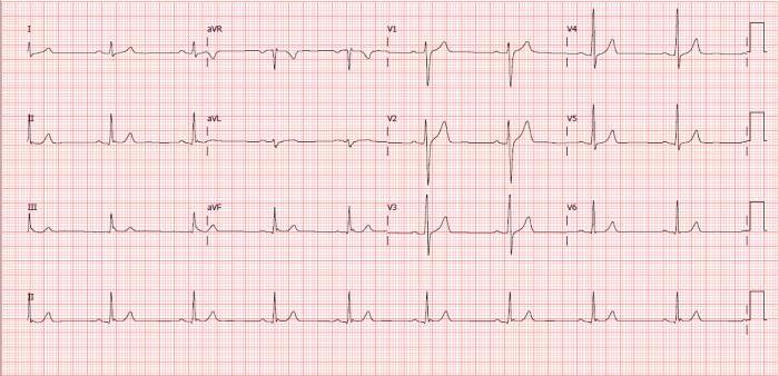 Eletrocardiograma normal - Masculino 32 anos