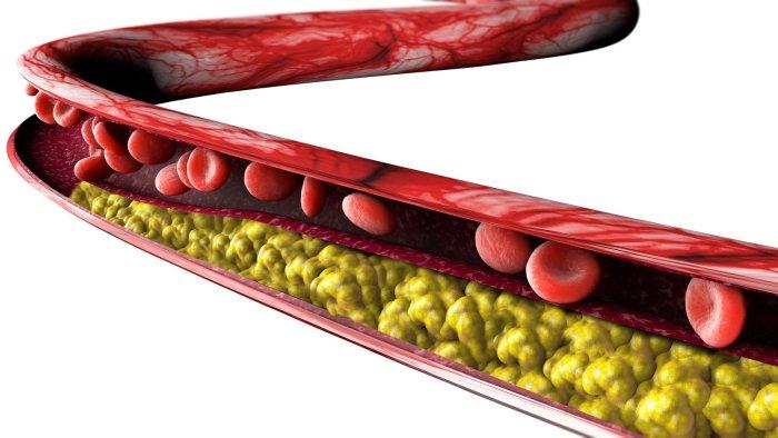 Imagem ilustrativa de Placas Ateroscleróticas. Entupimento de artérias do coração