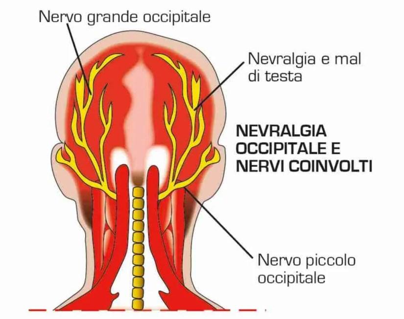 Male al collo e pressione su testa e occhi